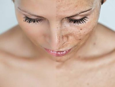 2014 01 15 sole danni pelle nuova mollecola protezione danni