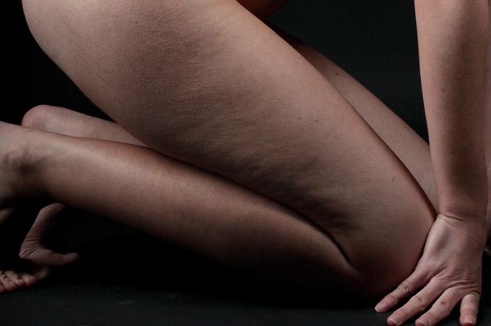2014 02 24 Cellulite star la cura critica